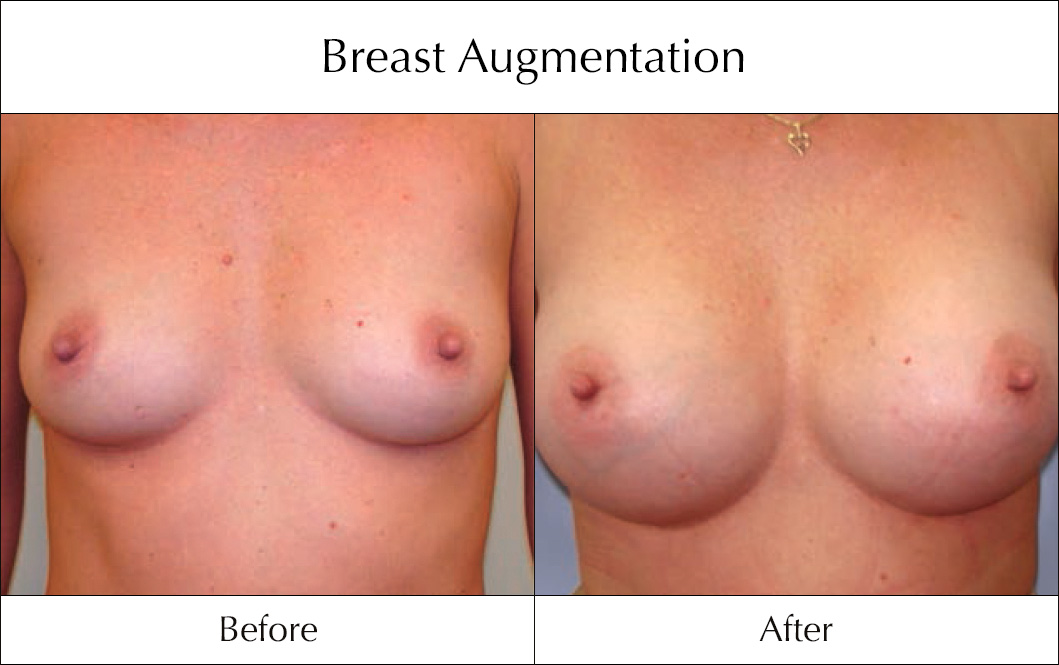 breast-enlargement-mammoplasty-before-and-after-10