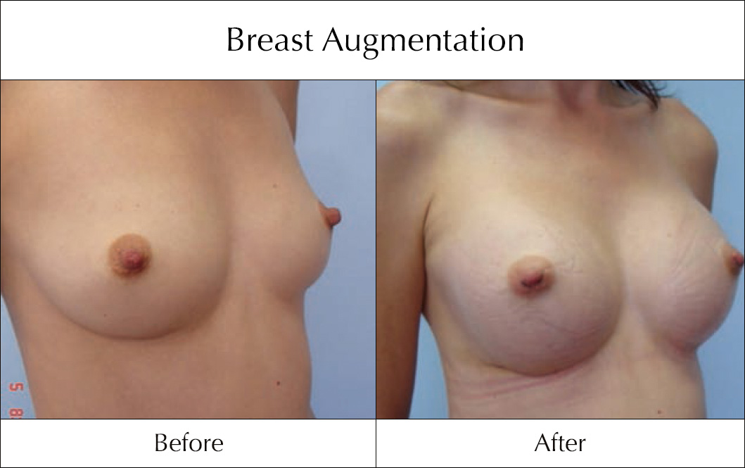 breast-enlargement-mammoplasty-before-and-after-11