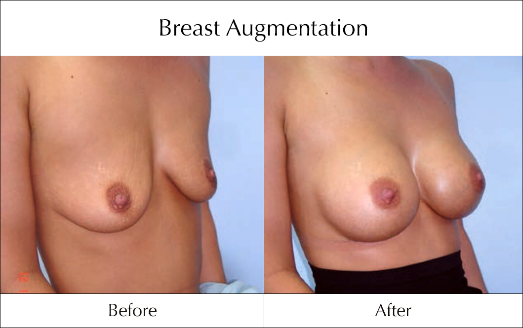 breast-enlargement-mammoplasty-before-and-after-12