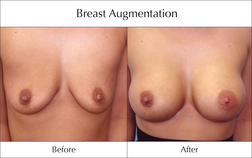 breast-enlargement-mammoplasty-before-and-after-13