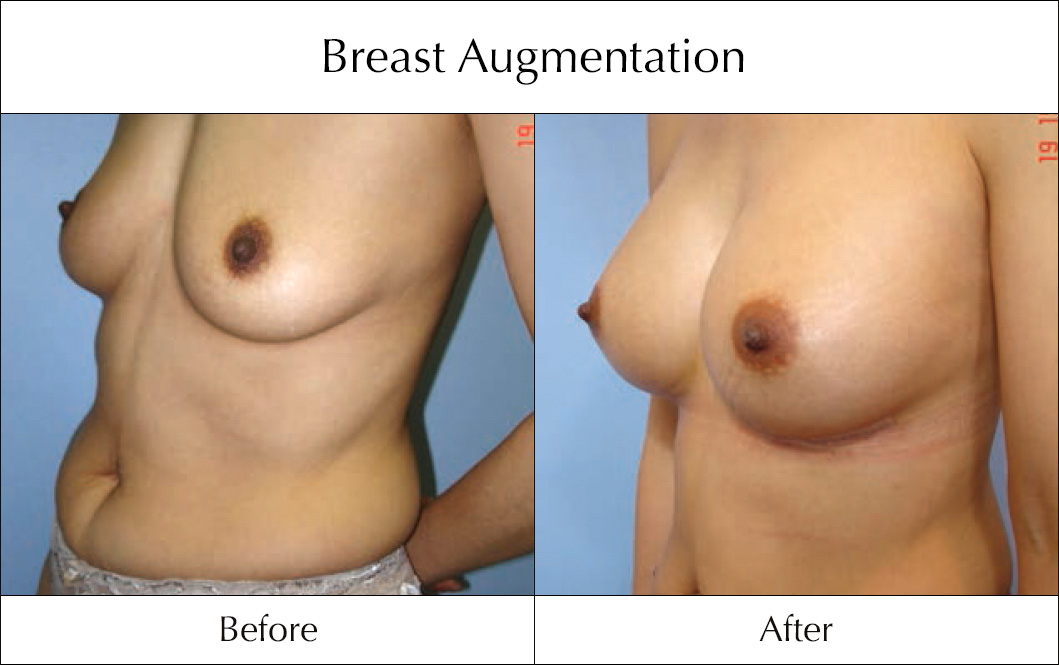 breast-enlargement-mammoplasty-before-and-after-14
