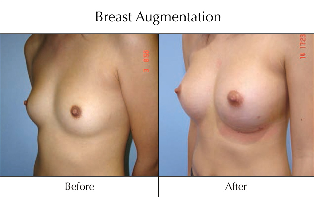 breast-enlargement-mammoplasty-before-and-after-16