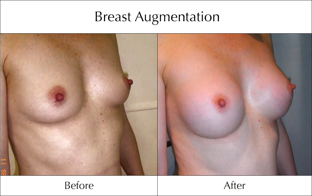 breast-enlargement-mammoplasty-before-and-after-17