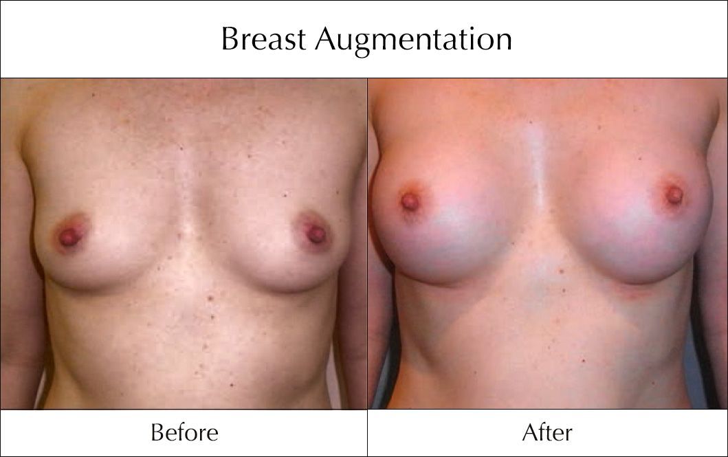 breast-enlargement-mammoplasty-before-and-after-18