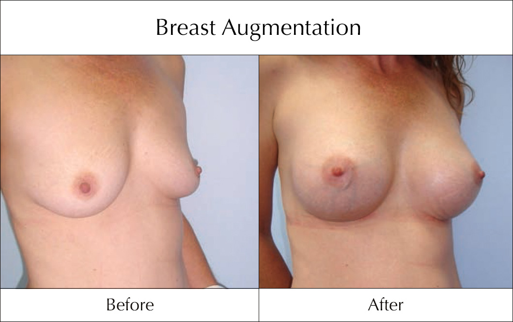 breast-enlargement-mammoplasty-before-and-after-19