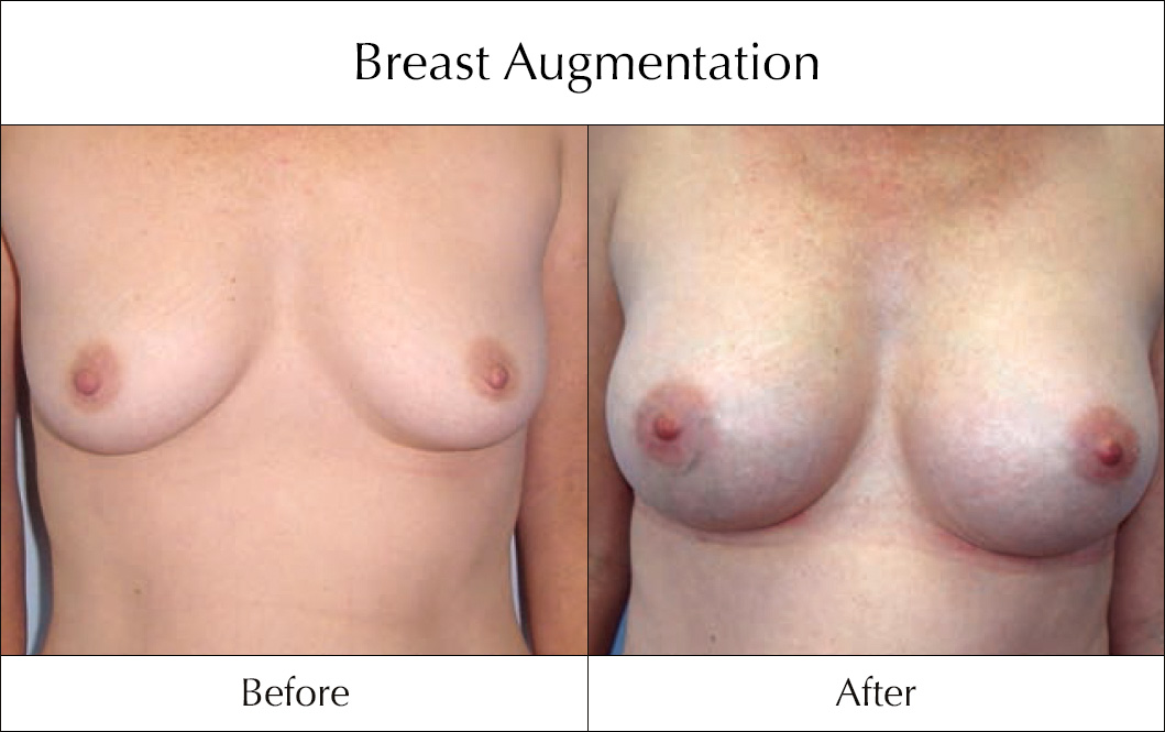 breast-enlargement-mammoplasty-before-and-after-20