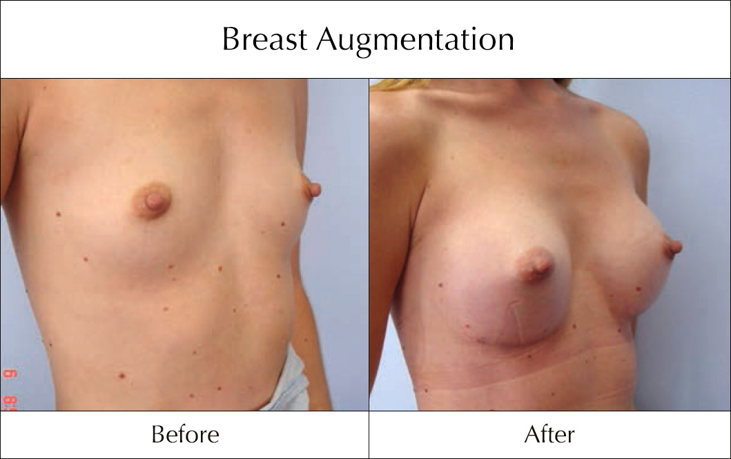breast-enlargement-mammoplasty-before-and-after-21