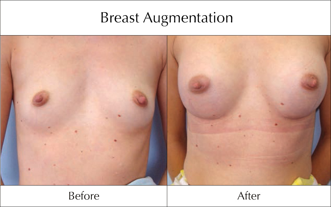 breast-enlargement-mammoplasty-before-and-after-22