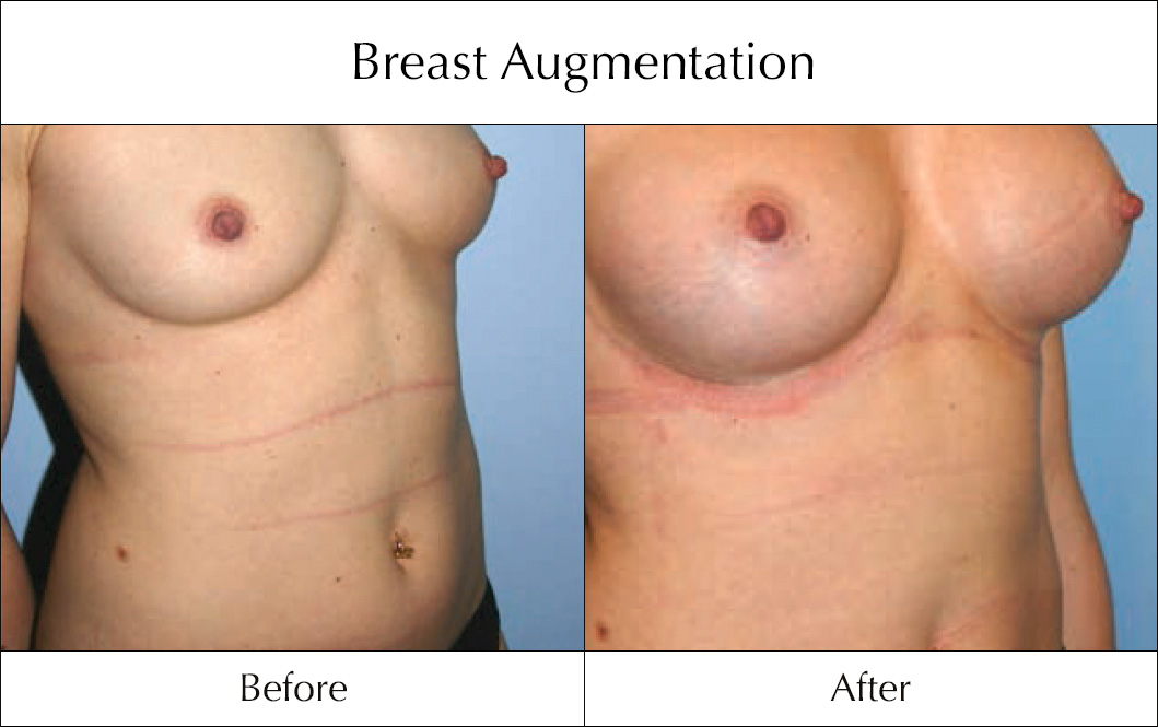 breast-enlargement-mammoplasty-before-and-after-23