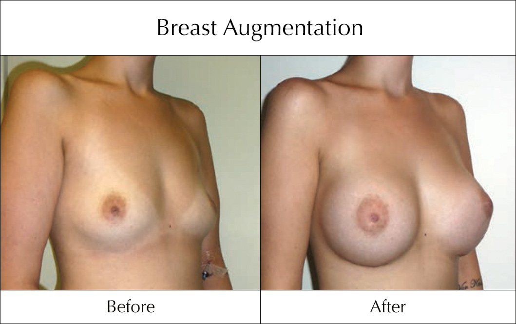 breast-enlargement-mammoplasty-before-and-after-3