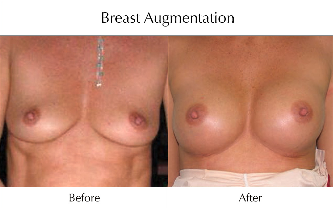 breast-enlargement-mammoplasty-before-and-after-4