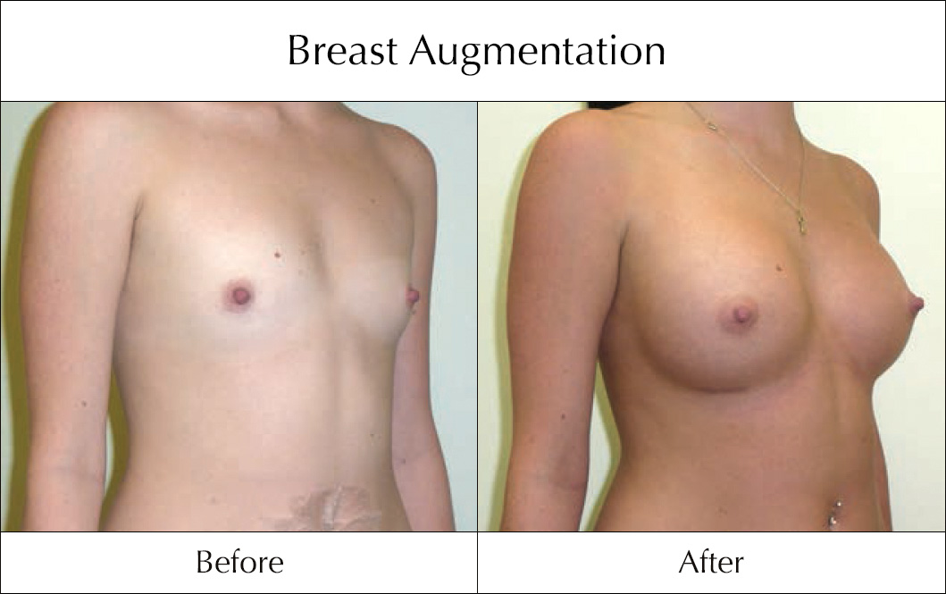 breast-enlargement-mammoplasty-before-and-after-5