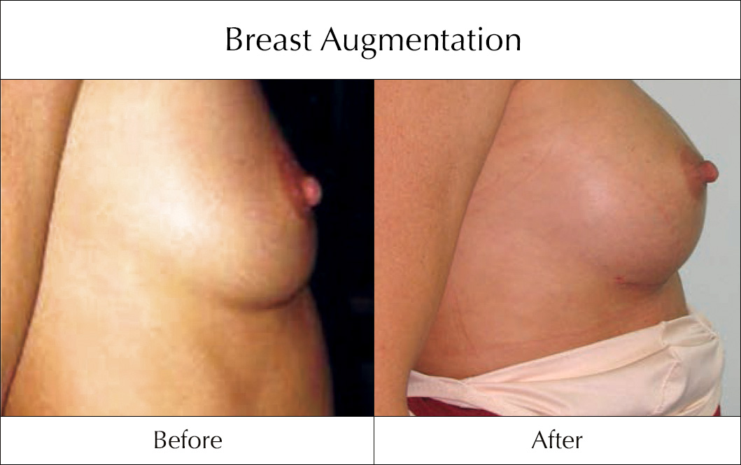 breast-enlargement-mammoplasty-before-and-after-6