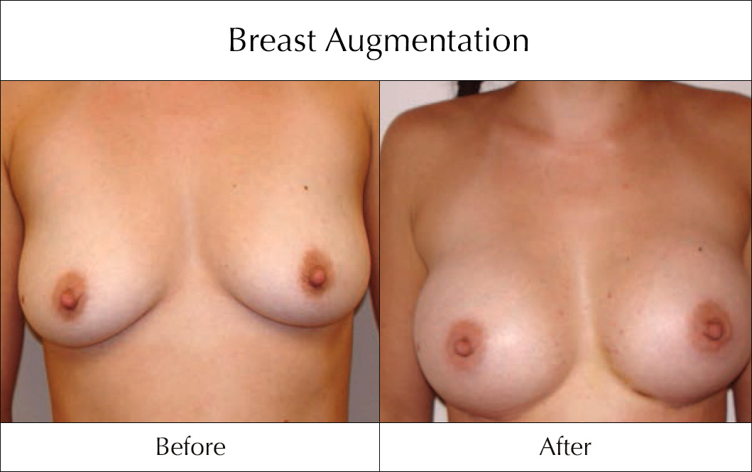breast-enlargement-mammoplasty-before-and-after-7