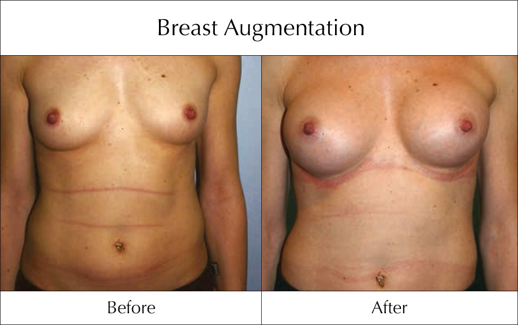 breast-enlargement-mammoplasty-before-and-after-8