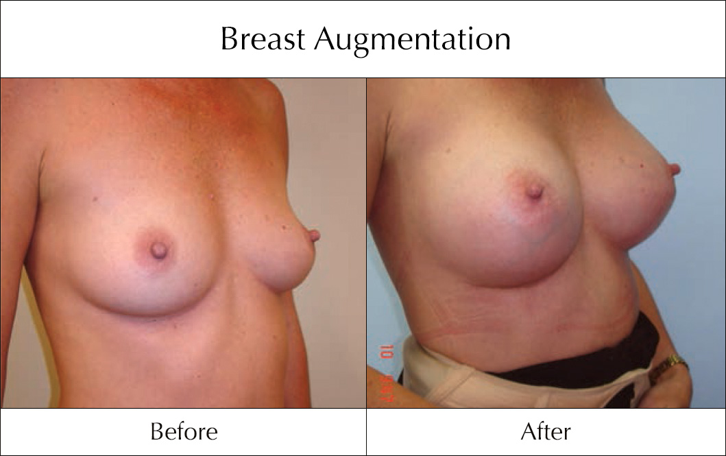breast-enlargement-mammoplasty-before-and-after-9