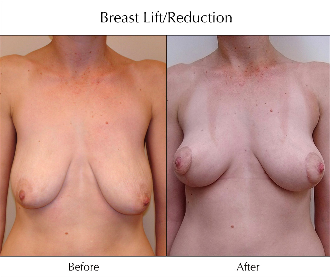 breast-lift-and-reduction-before-and-after-1