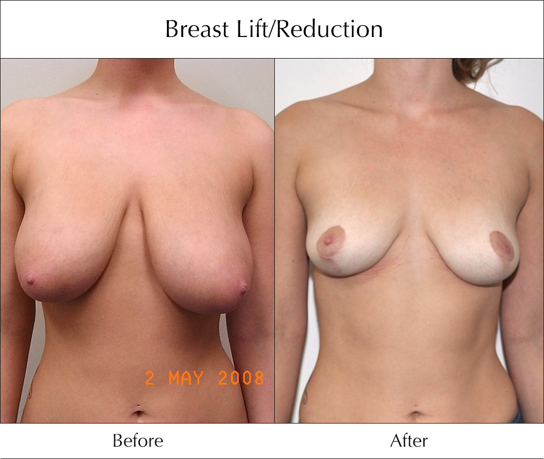 breast-lift-and-reduction-before-and-after-2