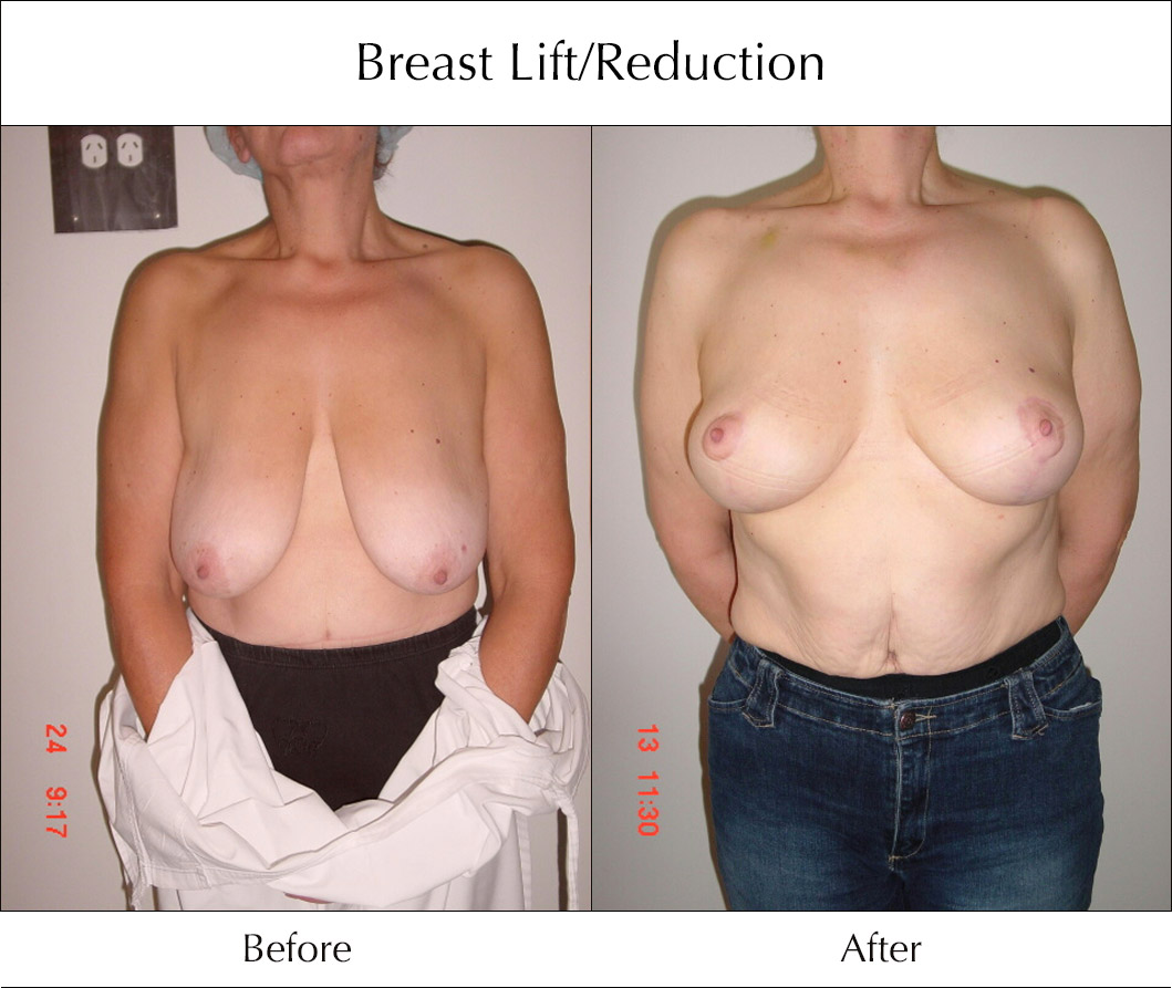 breast-lift-and-reduction-before-and-after-3