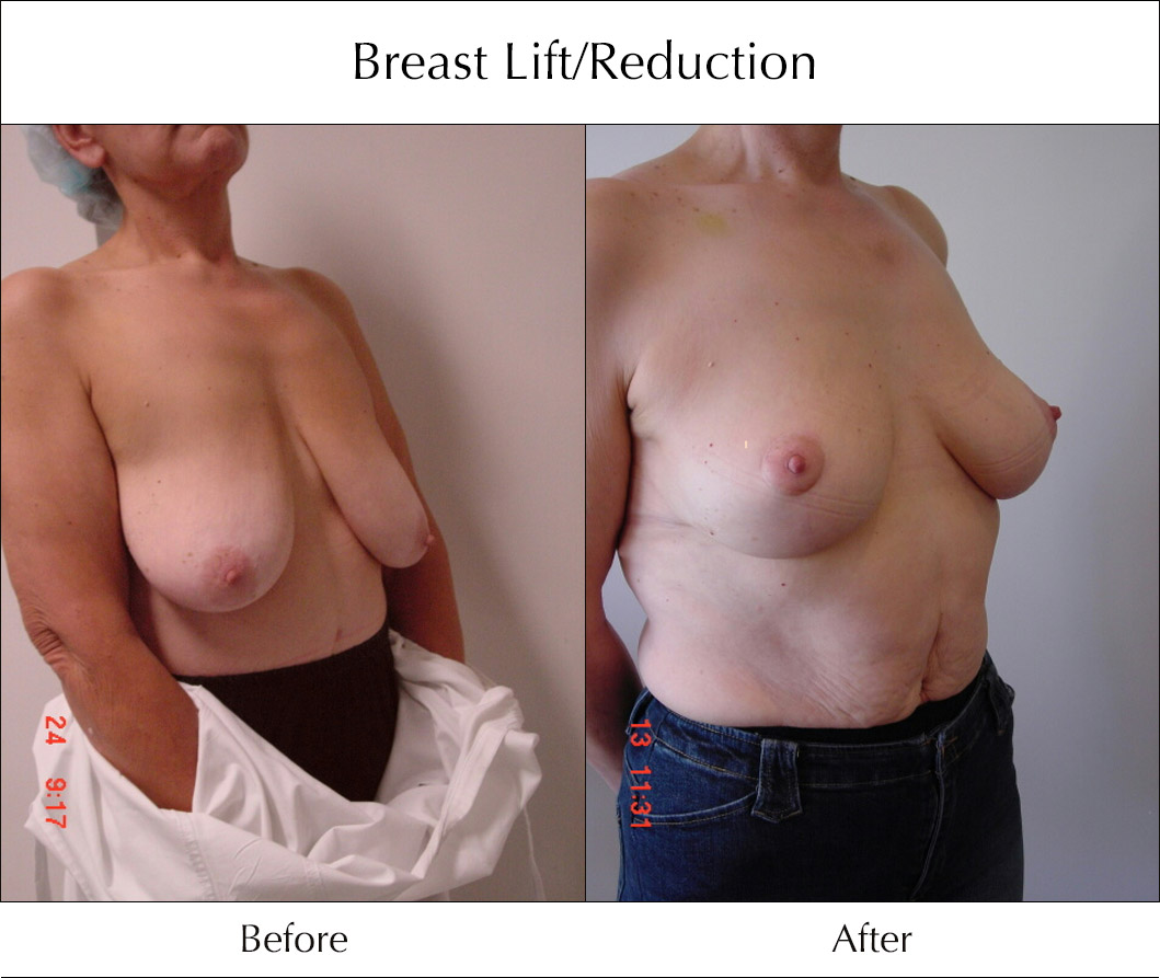 breast-lift-and-reduction-before-and-after-4