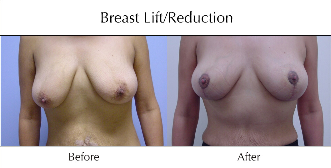 breast-lift-and-reduction-before-and-after-5