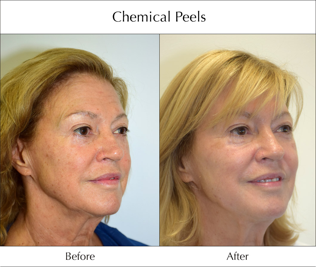 chemical-peels-before-and-after-2