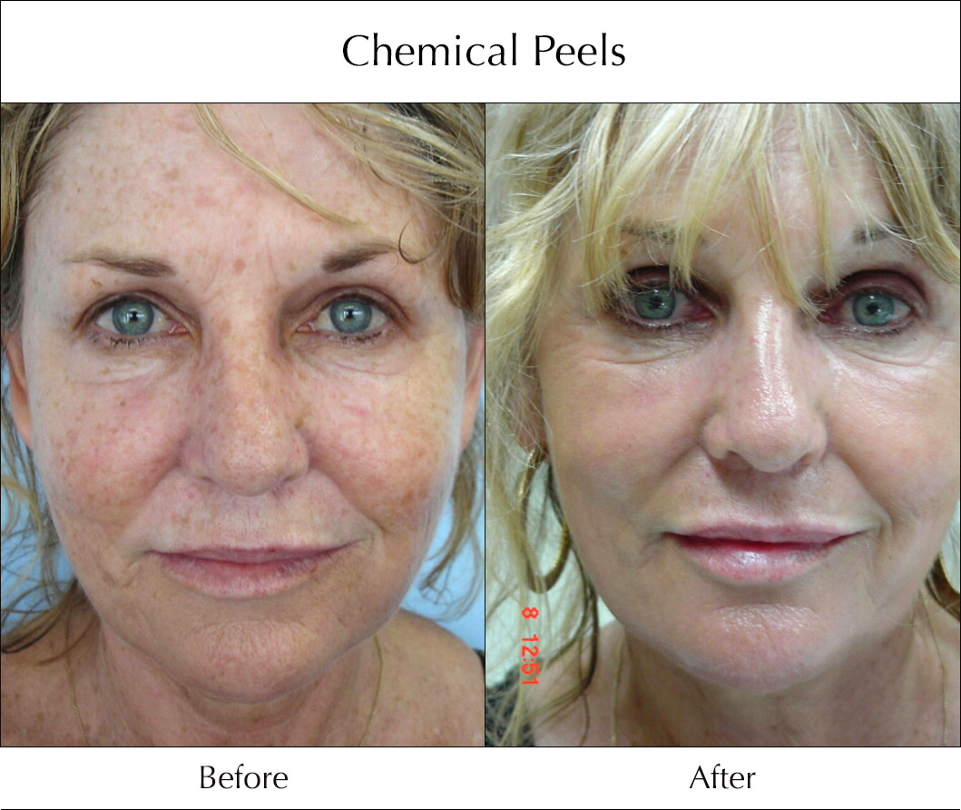 chemical-peels-before-and-after-3