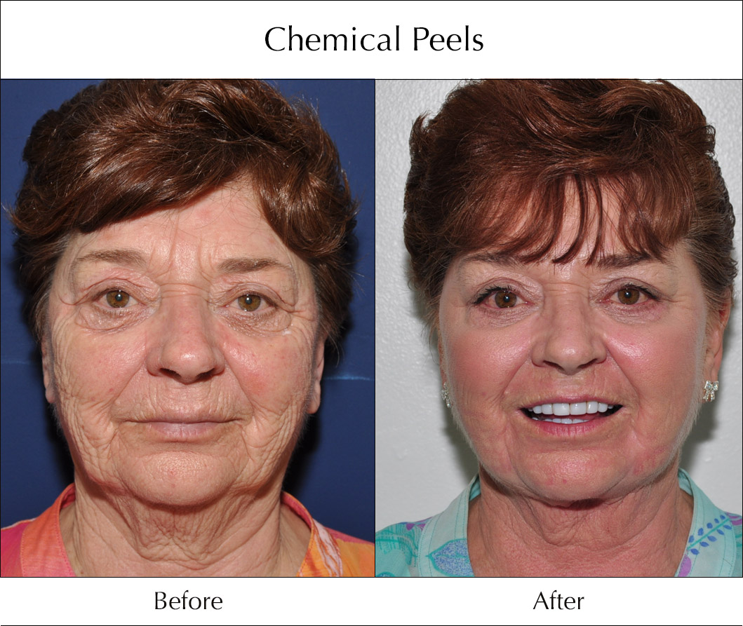 chemical-peels-before-and-after-4