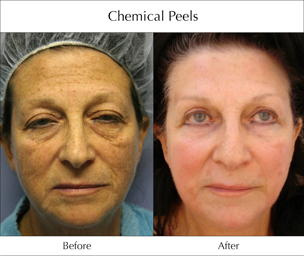 chemical-peels-before-and-after-5