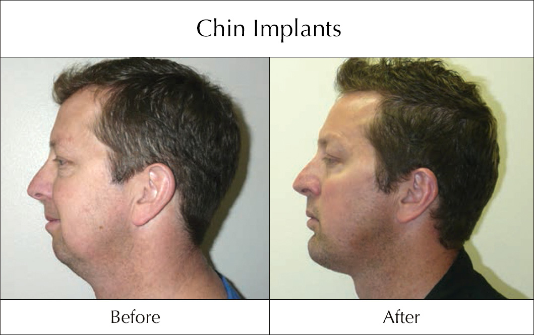 chin-implants-before-and-after-1
