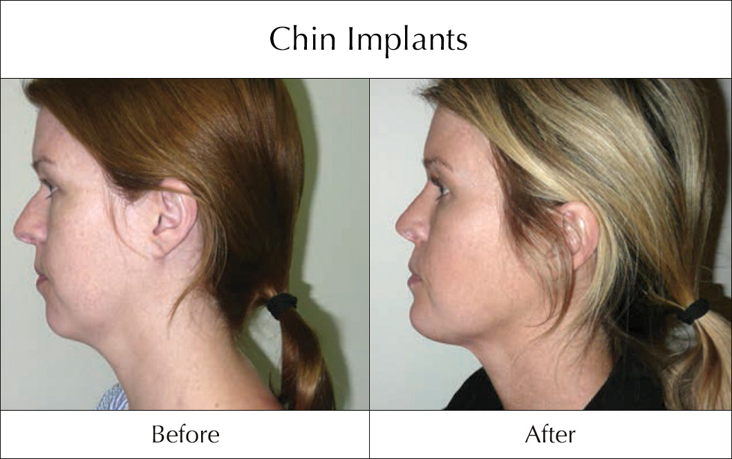 chin-implants-before-and-after-3