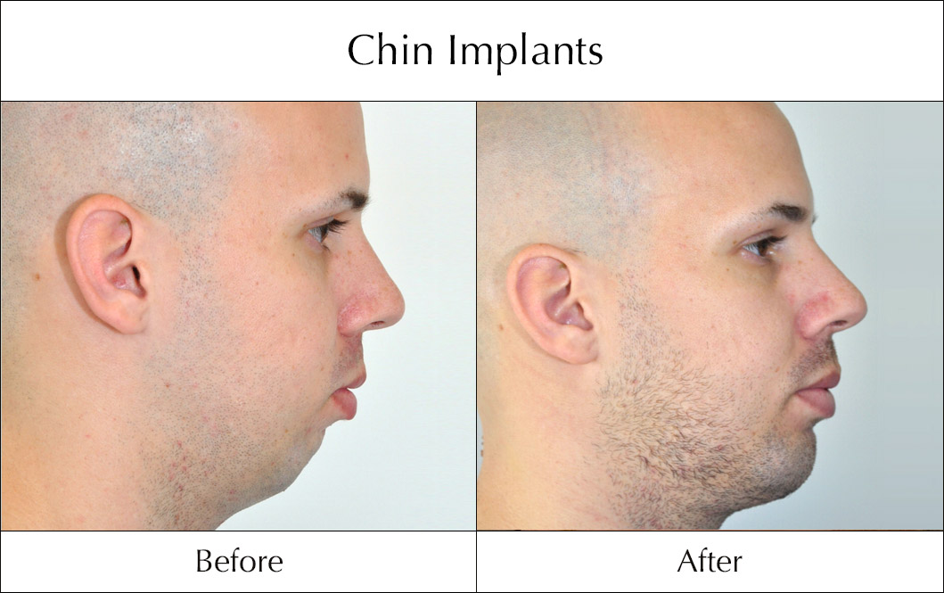 chin-implants-before-and-after-4