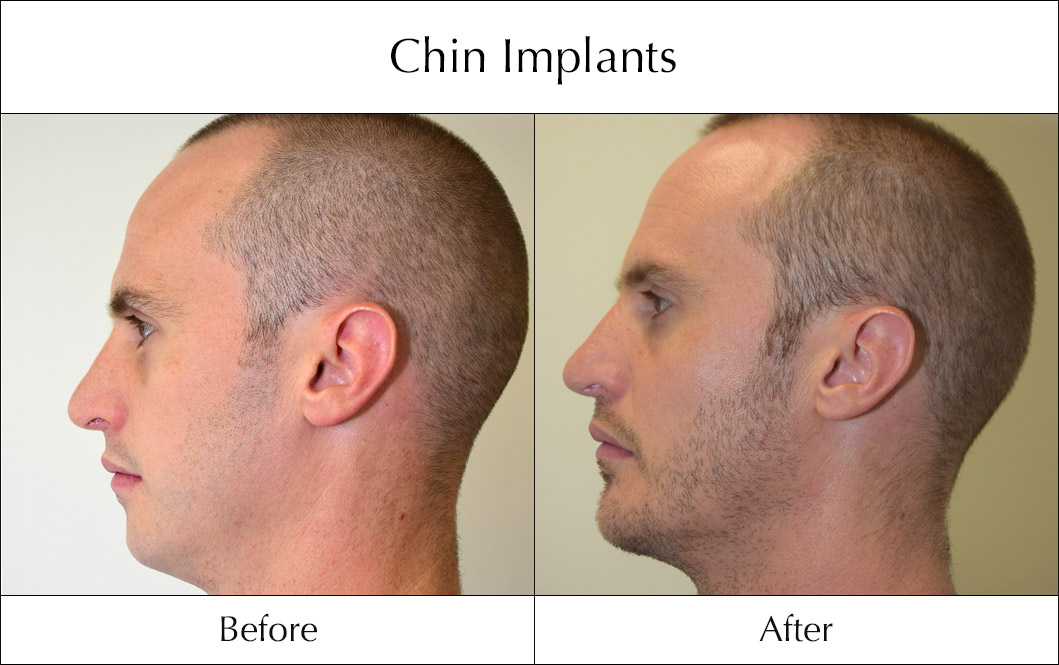 chin-implants-before-and-after-5
