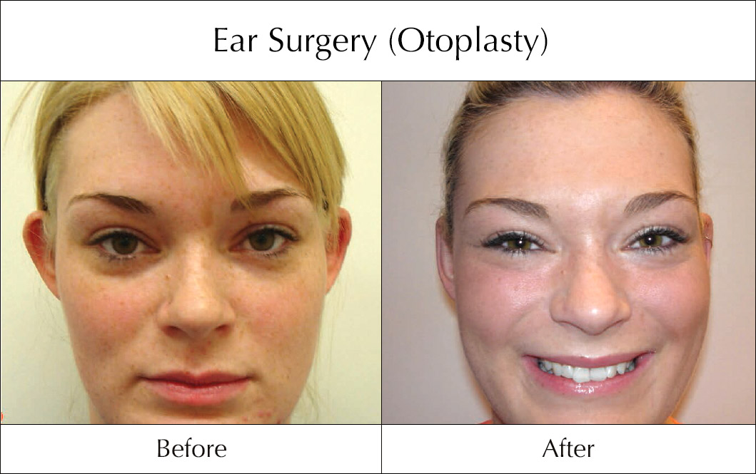 ear-surgery-otoplasty-before-and-after-2