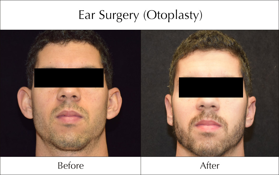 ear-surgery-otoplasty-before-and-after-3
