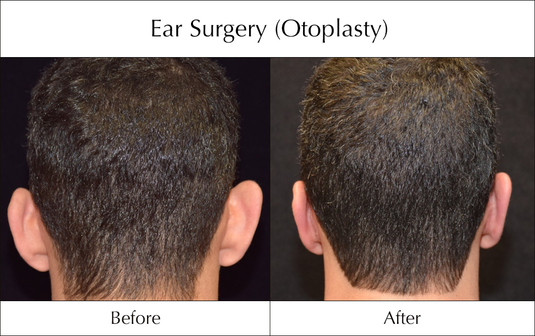 ear-surgery-otoplasty-before-and-after-4