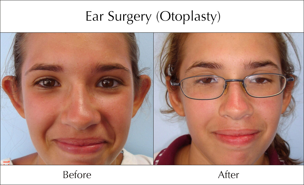 ear-surgery-otoplasty-before-and-after-5