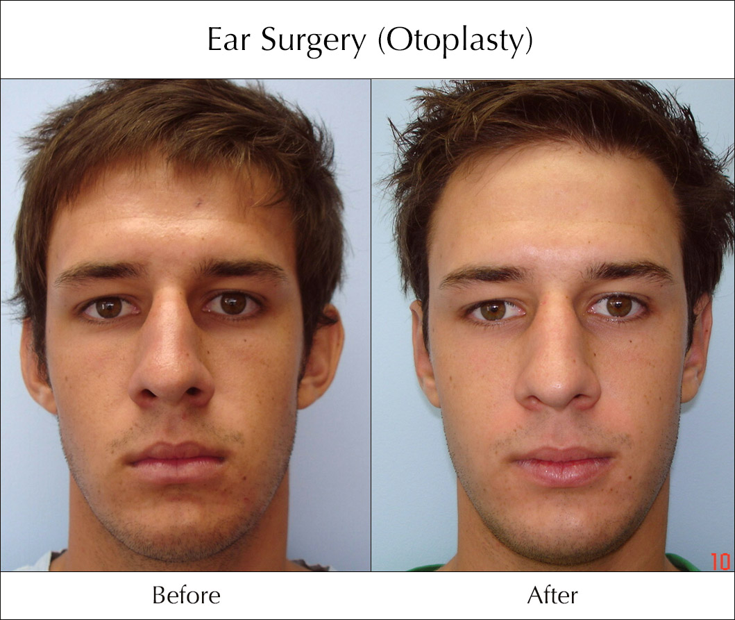 ear-surgery-otoplasty-before-and-after-6