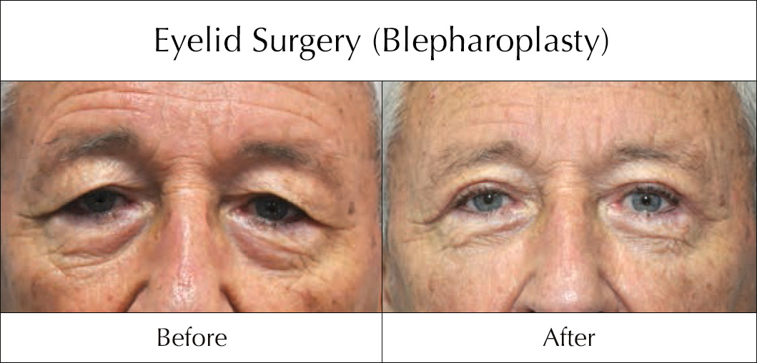 eyelid-surgery-blepharoplasty-before-and-after-1