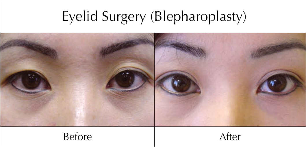 eyelid-surgery-blepharoplasty-before-and-after-2
