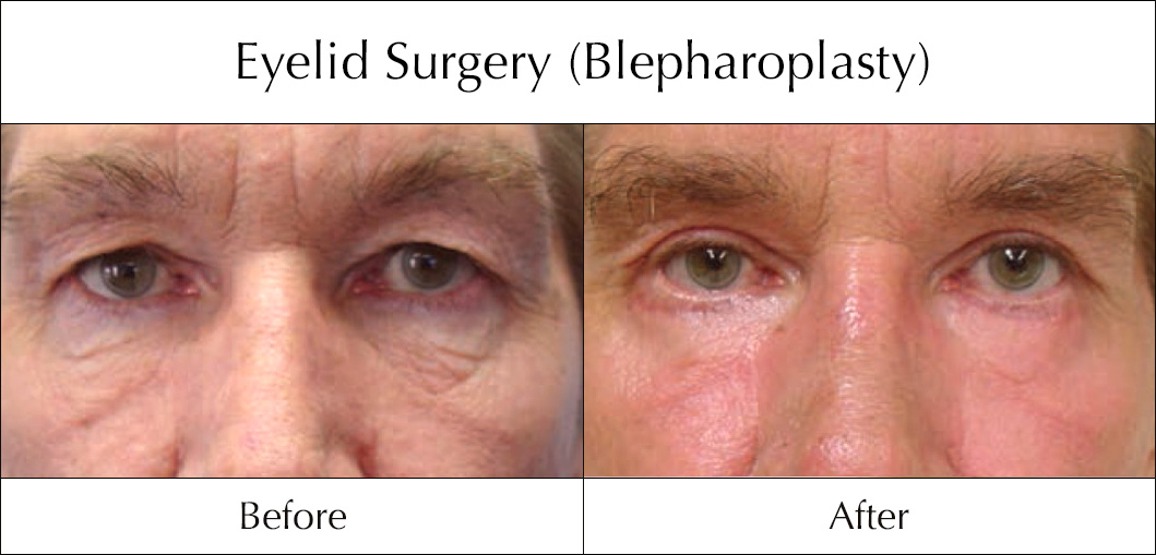 eyelid-surgery-blepharoplasty-before-and-after-3