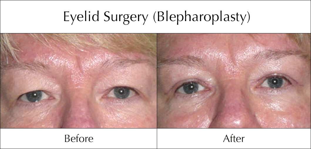 eyelid-surgery-blepharoplasty-before-and-after-4