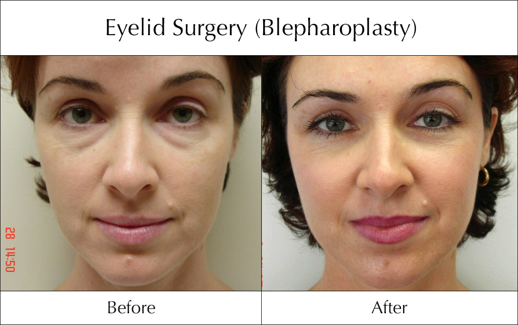 eyelid-surgery-blepharoplasty-before-and-after-5
