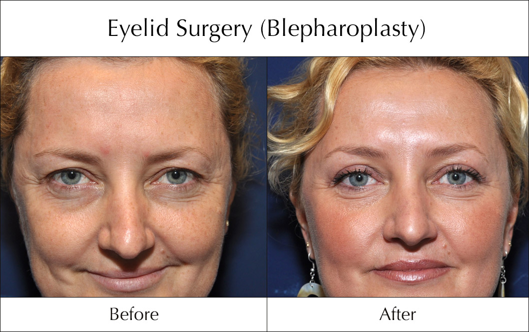 eyelid-surgery-blepharoplasty-before-and-after-6