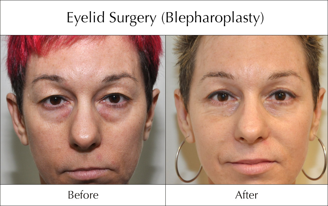 eyelid-surgery-blepharoplasty-before-and-after-7