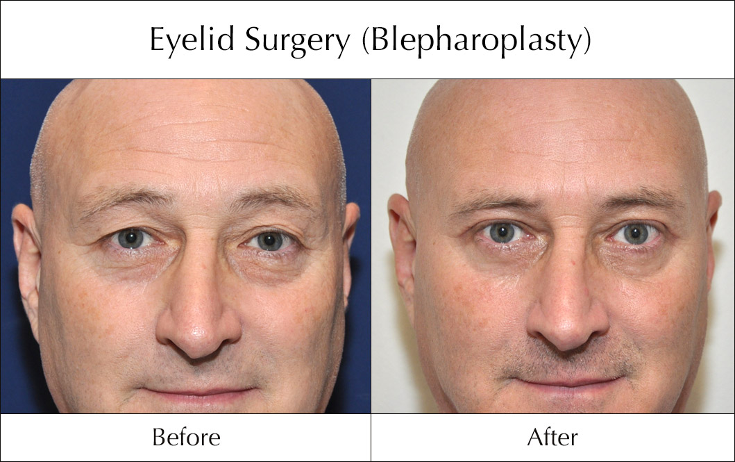 eyelid-surgery-blepharoplasty-before-and-after-8