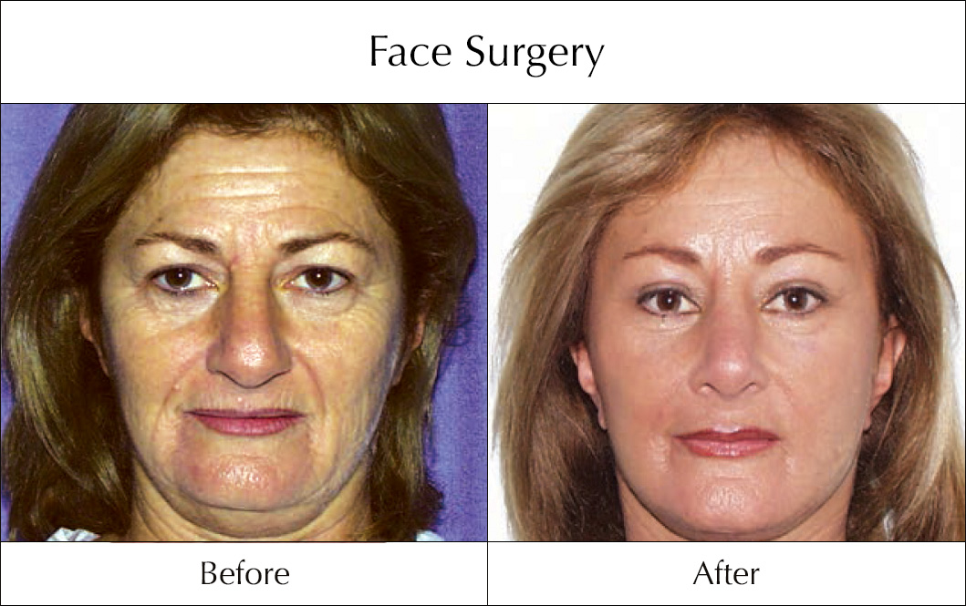 face-surgery-before-and-after-10