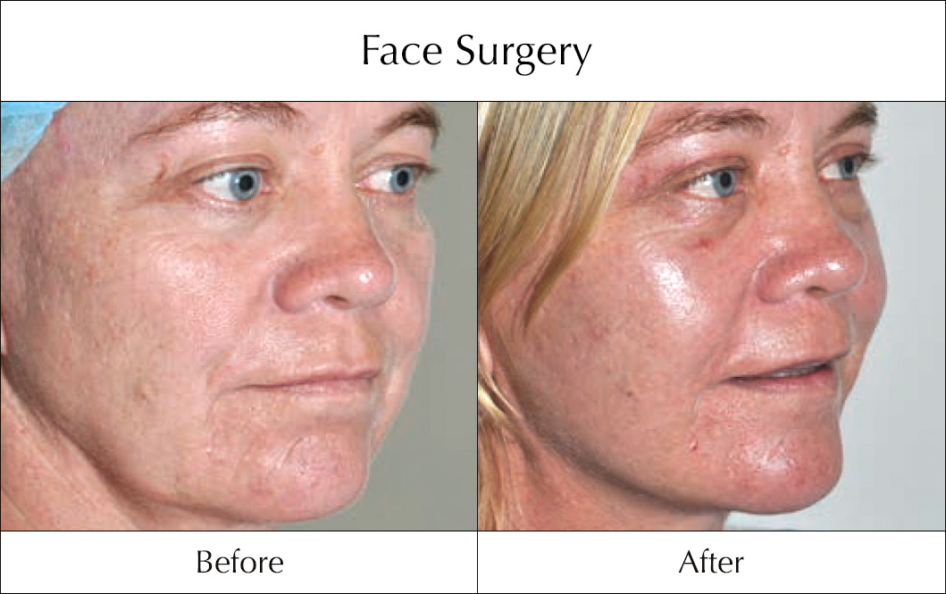 face-surgery-before-and-after-11