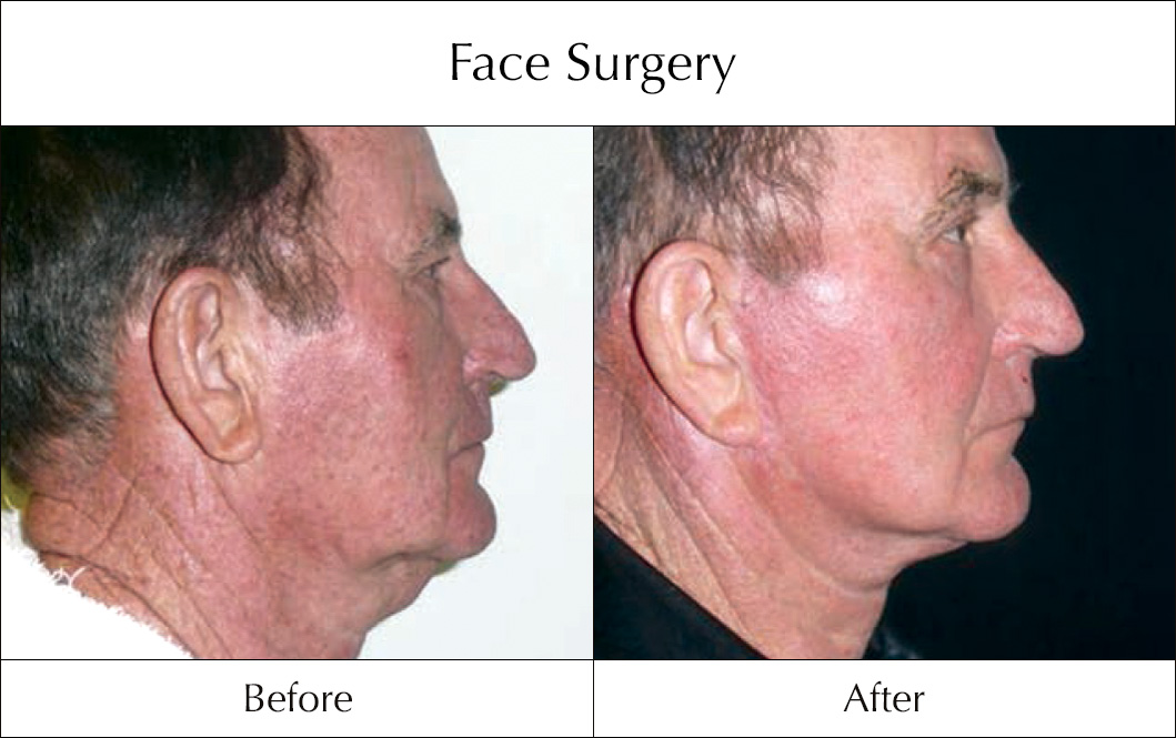 face-surgery-before-and-after-12