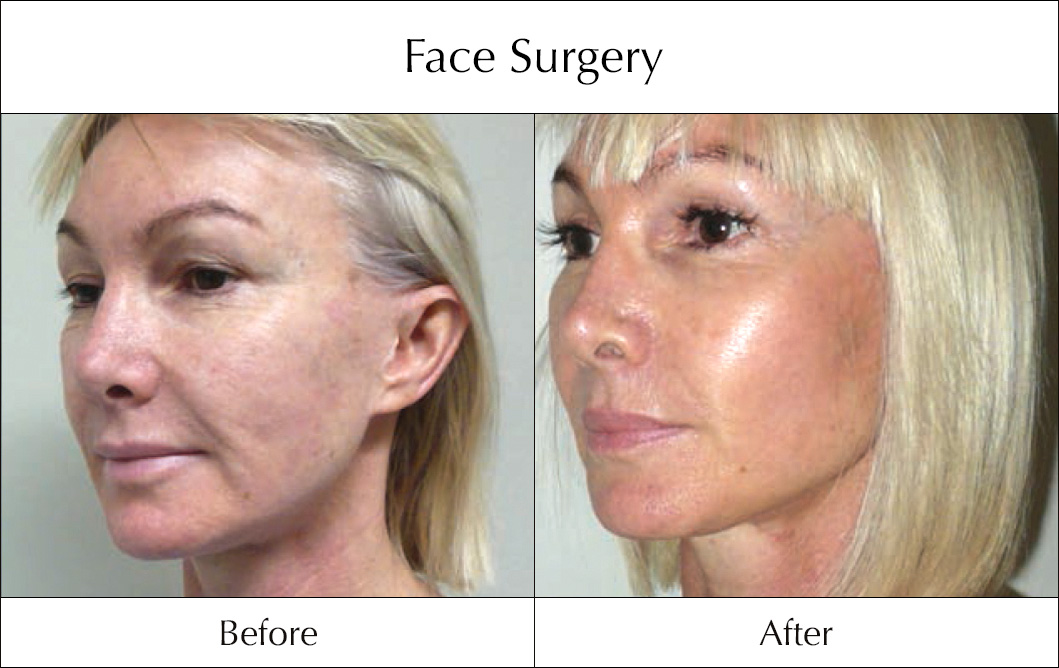 face-surgery-before-and-after-3